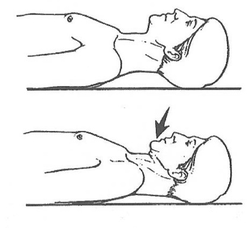 axial retraction example for text neck