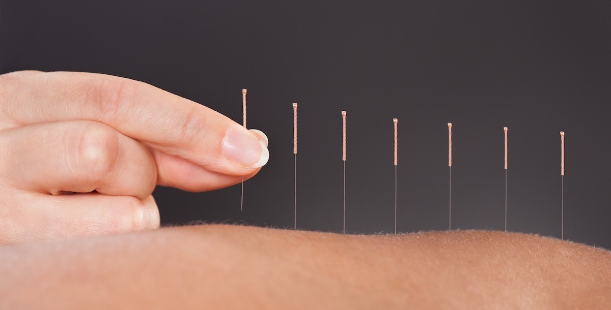 Acupuncture Treatment in NYC